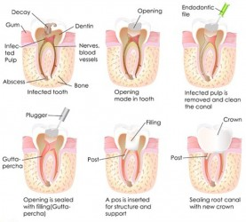 root canal chart